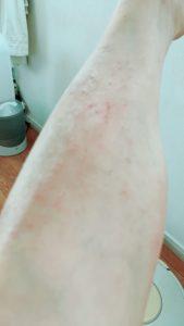 ポリエステル アレルギー